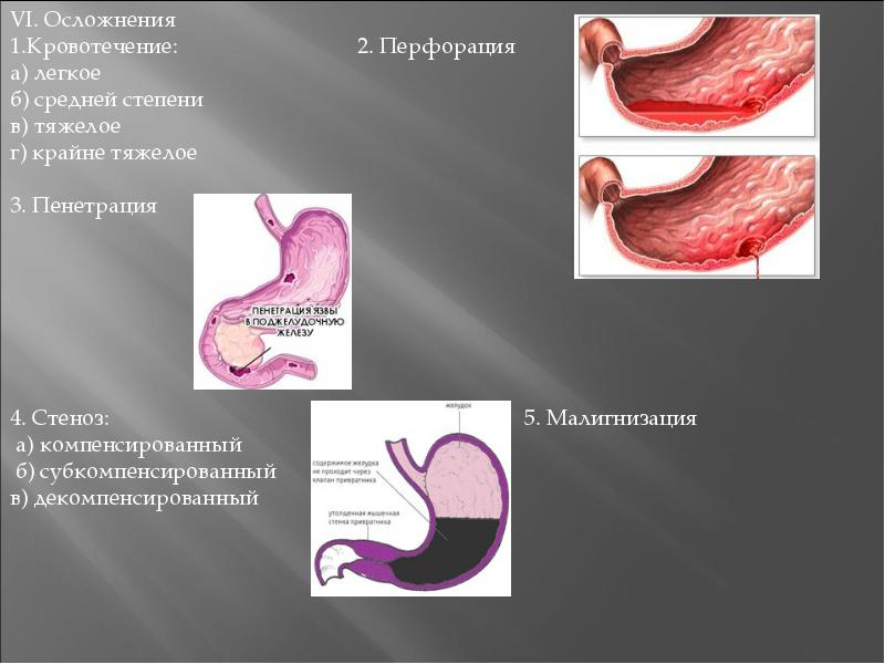 Язвенная болезнь желудка - презентация, доклад, проект