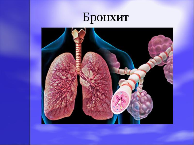 Пылевой бронхит симптомы