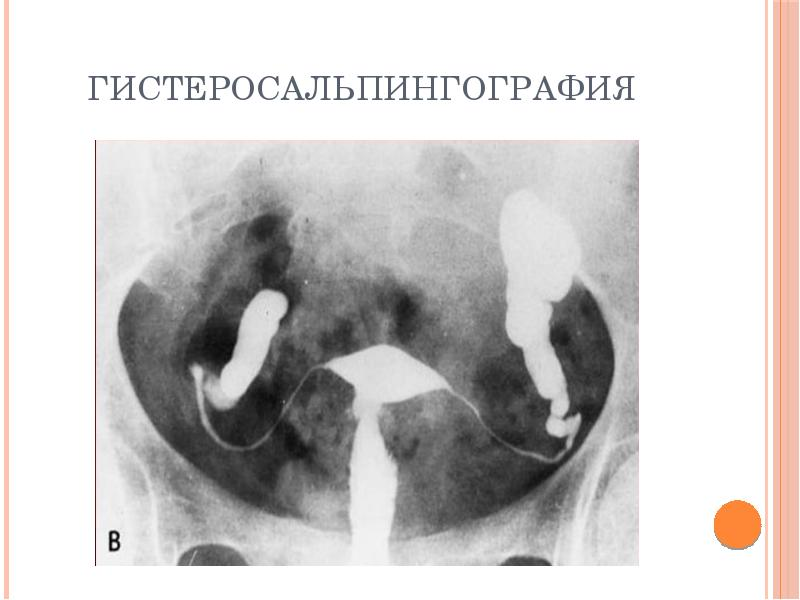 Воспалительные заболевания органов малого таза - презентация, доклад, проект