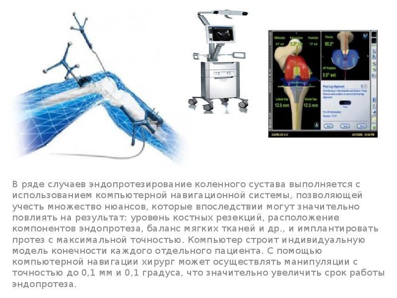 Эндопротезирование суставов презентация
