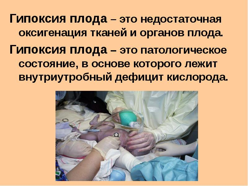Гипоксия у беременных это что 7