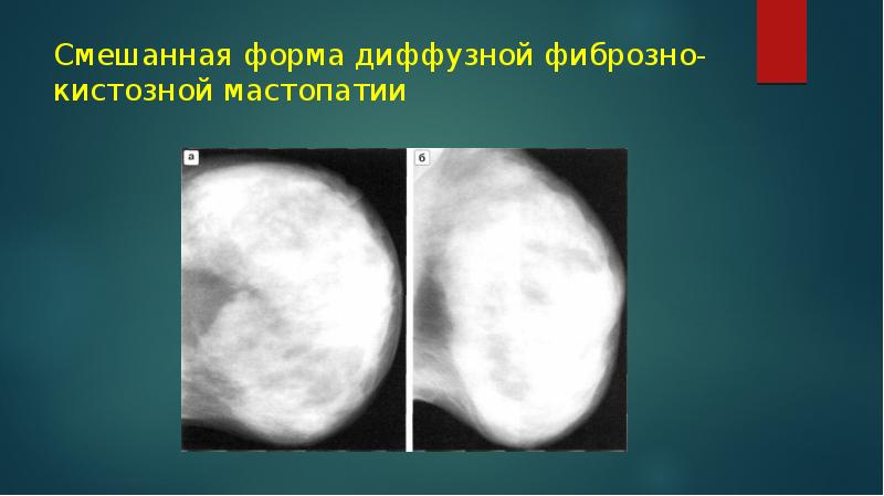 Рентген диагностика заболеваний молочной железы - презентация, доклад, проект