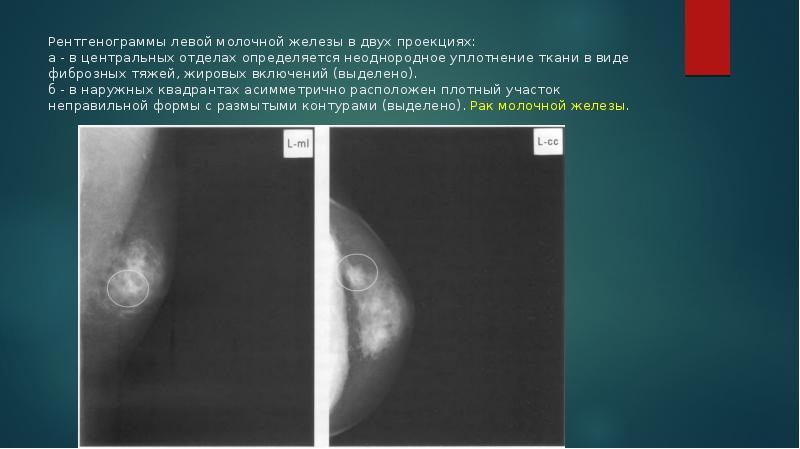 Маммография диагноз фиброзно жировая инволюция