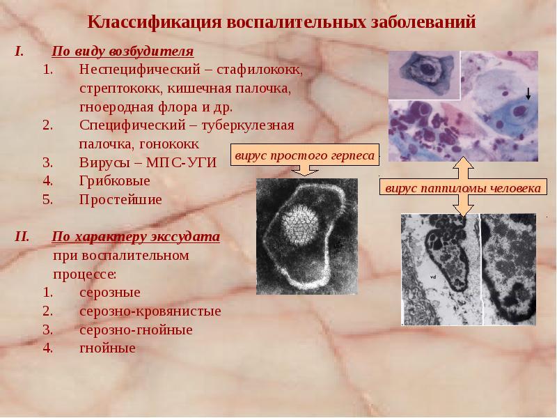 Воспалительные заболевания женских половых органов - презентация, доклад, проект