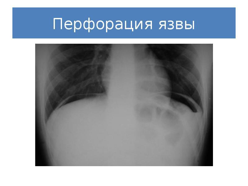 Перфорация полого органа брюшной