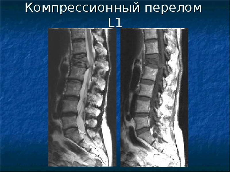 Компрессионный перелом с опухолью позвоночника