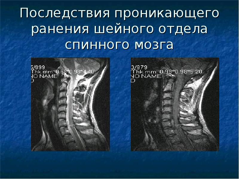 ушиб шейного отдела спинного мозга мкб