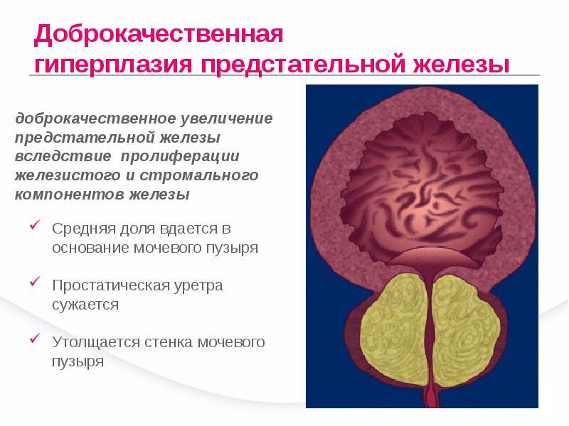 Дгпж хронического простатита что такое простатита у мужчин симптомы и лечение