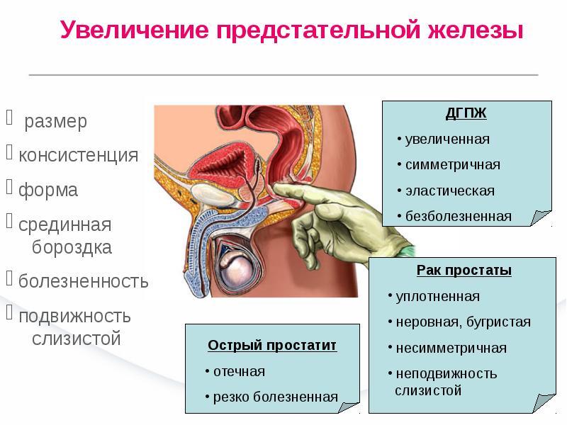 Влияние простатита на половые функции какими препаратами лечение простатита
