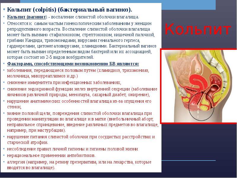 Неспецифические воспалительные заболевания в гинекологии - презентация, доклад, проект