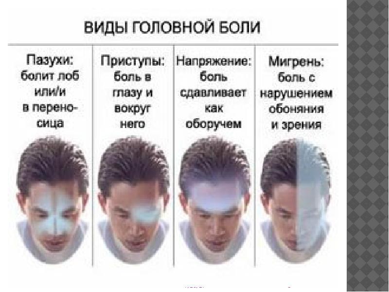 Почему болит голова в области лба и висков