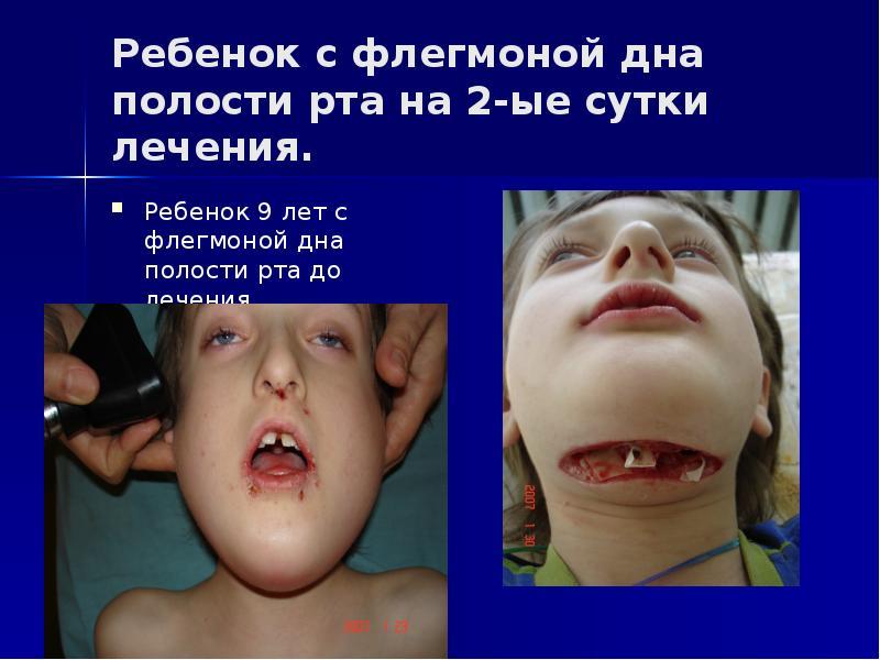 назначению термобелье флегмоны дна полости рта виду материала
