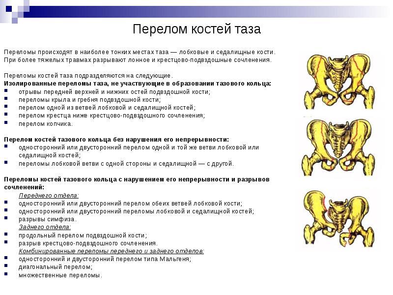 Механизм переломов костей таза