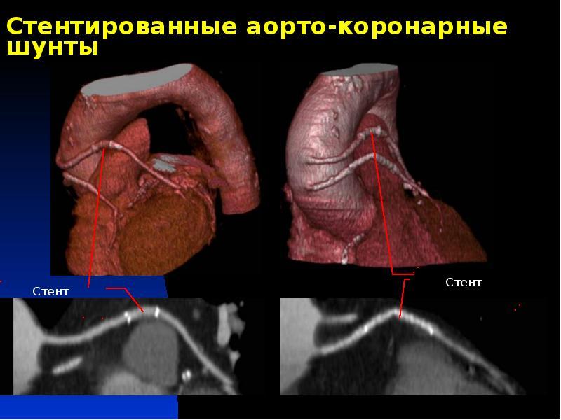 Последствия аортокоронарного шунтирования
