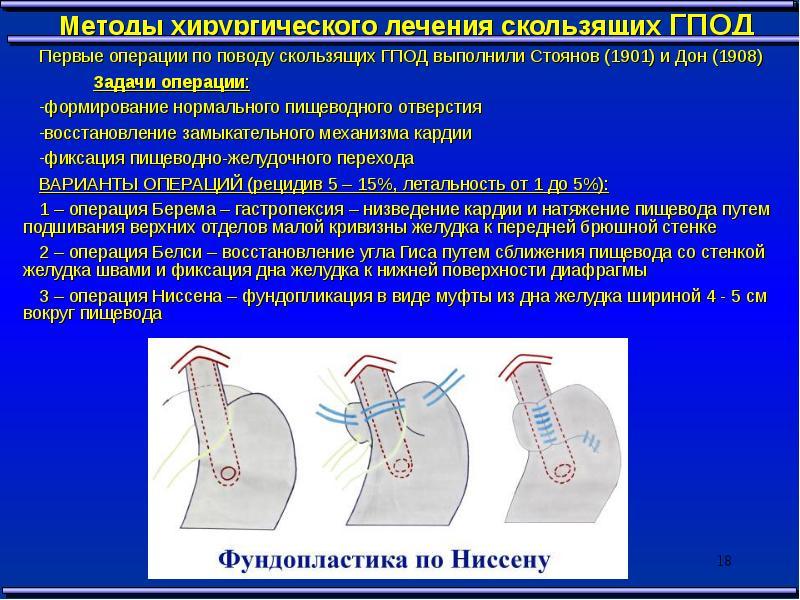 операция диафрагмальная грыжа новорожденного