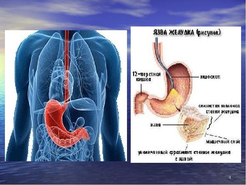 Хроническое заболевание, при котором образуется дефект двенадцатиперстной кишки или слизистой стенки желудка, называется язвенной болезнью (яб).