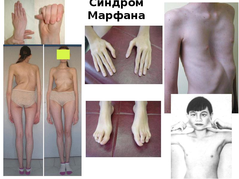 characteristics of the marfans syndrome