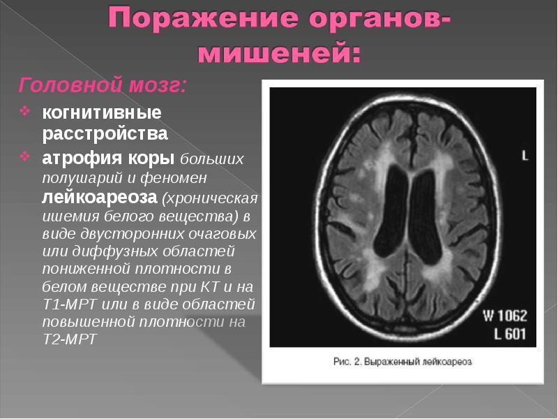 Диффузно атрофические изменения головного мозга