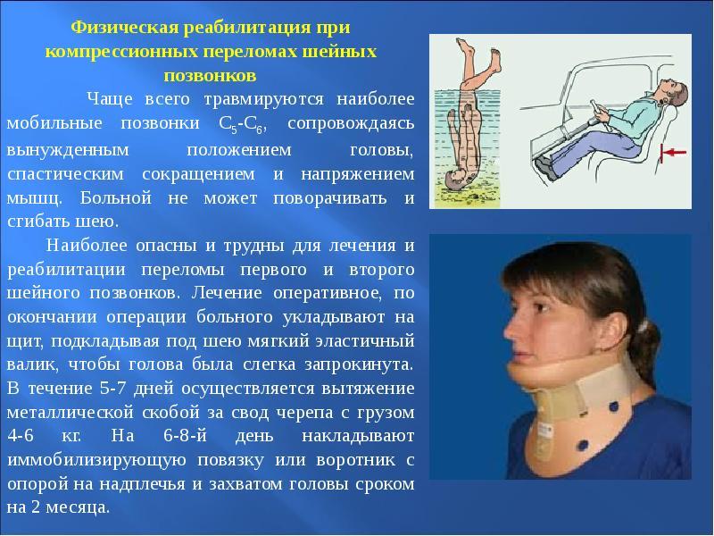 Курс реабилитации при переломе позвоночника