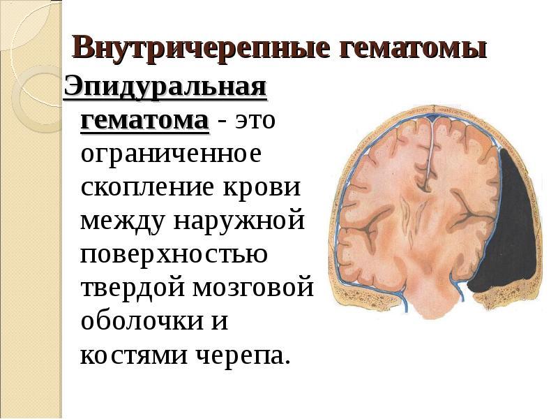 Триада симптомов при внутричерепной гематоме