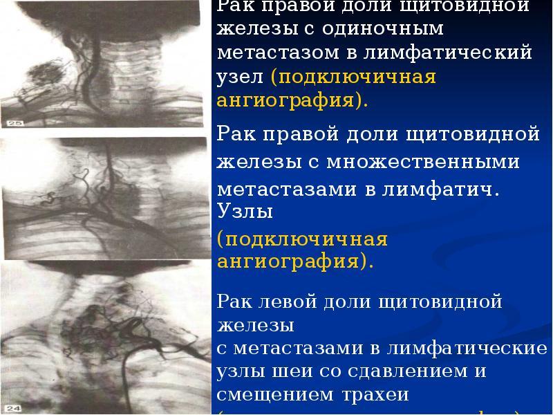 Сахарный диабет или заболевание щитовидной железы