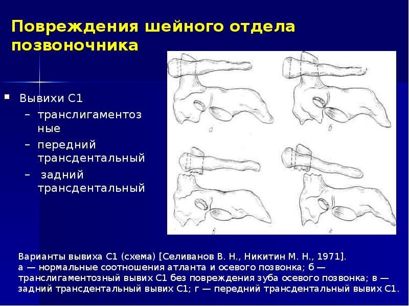 Травма шейного отдела позвоночника у ребенка симптомы