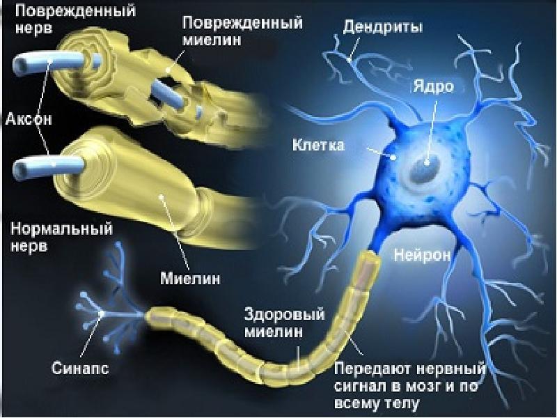 Что полезно при рассеянном склерозе