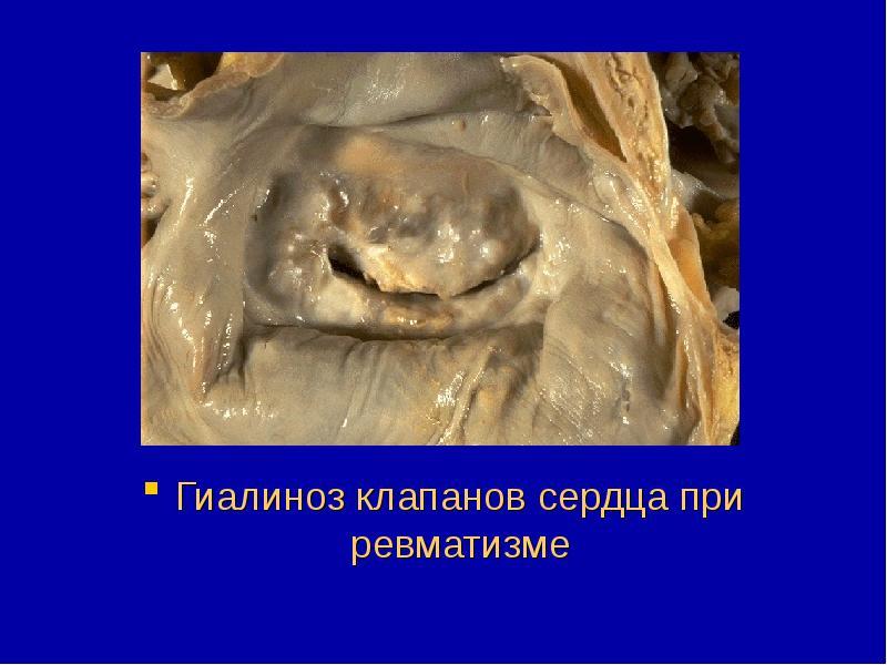 Гиалиноз — Практика гистолога | 600x800