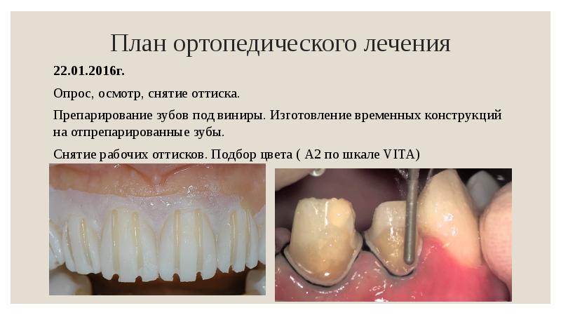 зубные виниры стоимость