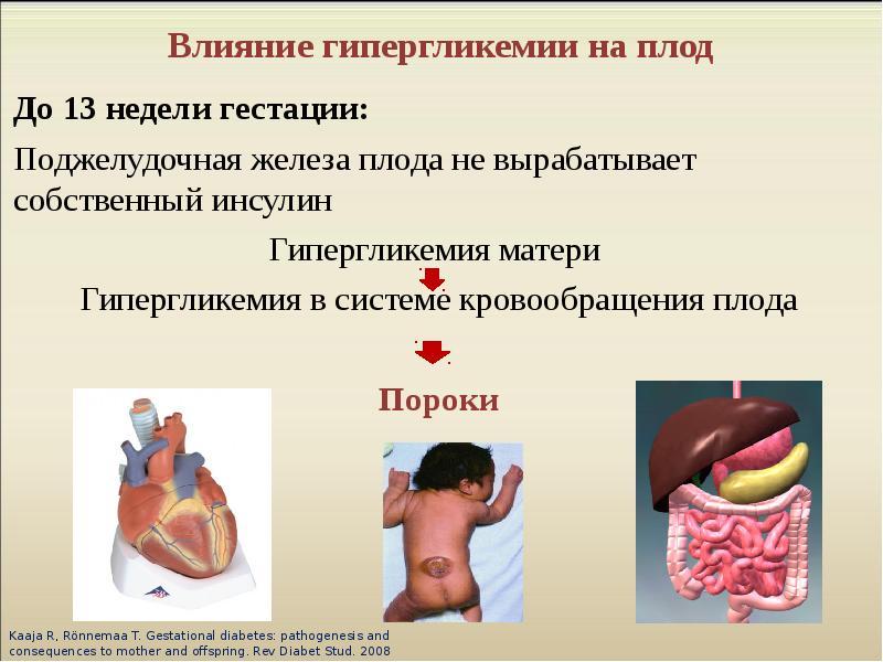 Влияние на плод сахарного диабета