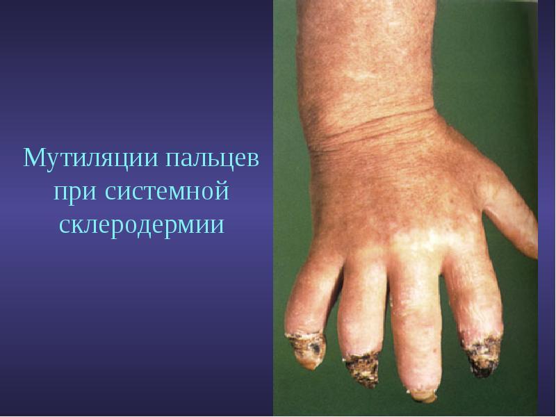 Диета при системной склеродермии Скальпель