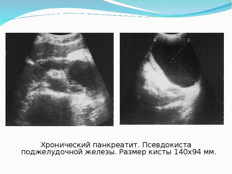 Показания узи поджелудочной железы