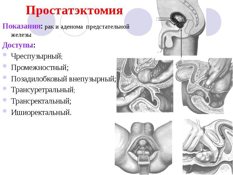 Рак предстательной железы операция последствия
