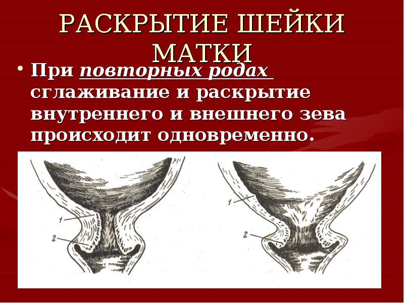 Вдохновение Клин, раскрытие шейки матки на 3 4 см вставляем палец
