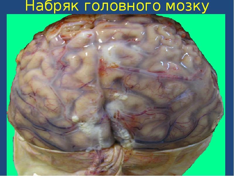 Может ли отек мозга при алкоголизме