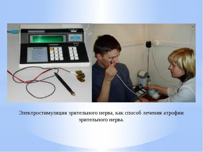 Электростимуляция в офтальмологии