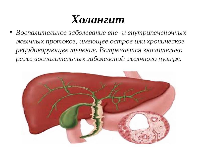 Дискинезия желчевыводящих путей симптомы