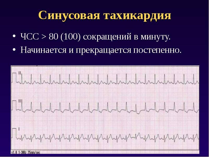 ритмы сердечного сокращения картинки расположению