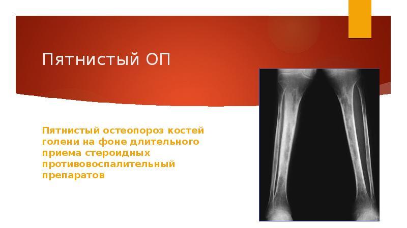 Реферат на тему остеопороз костей