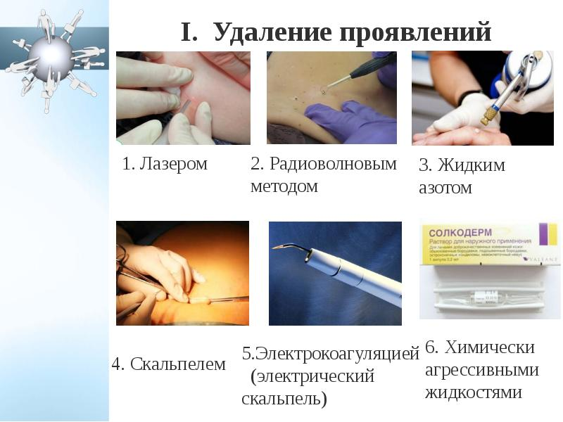 Презентация на тему вирус папилломы человека