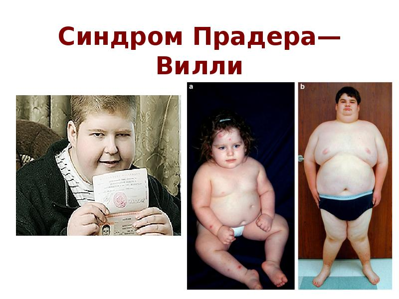 prader willi syndrome Prader-willi syndrome (pws) is an uncommon genetic disorder characterized by mental retardation, decreased muscle tone, short stature, emotional lability and an insatiable appetite which can lead to life-threatening obesity.
