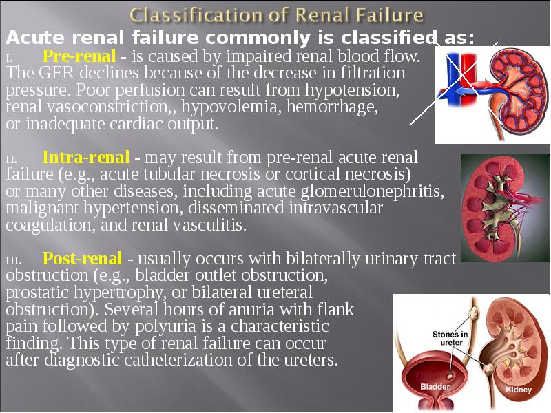 diagnosis acute renal failure