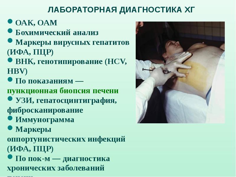 В стационаре лечат гепатит с