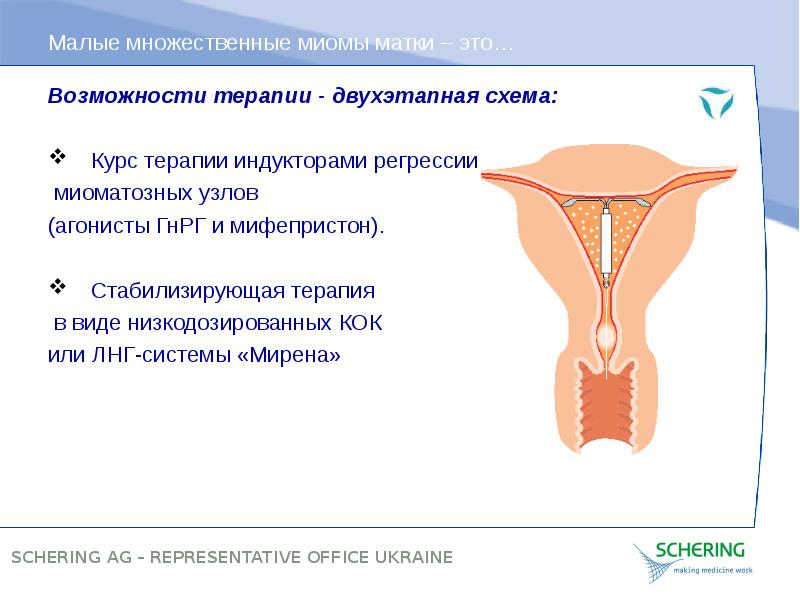 Эффективное лечение миомы матки отзывы