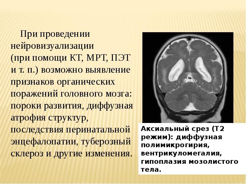 образом, атрофия головного мозга у детей белье имеет