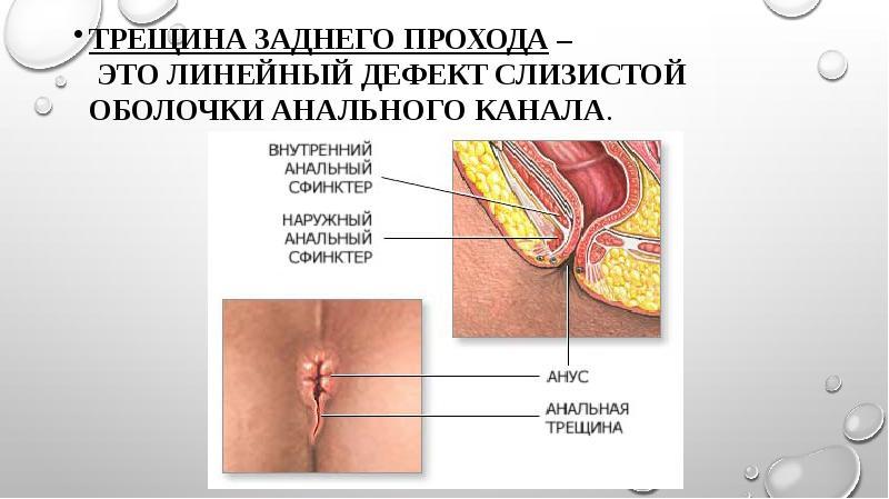 kak-lechat-treshinu-v-analnom-otverstii
