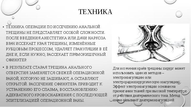 issechenie-analnoy-treshini-posledstviya