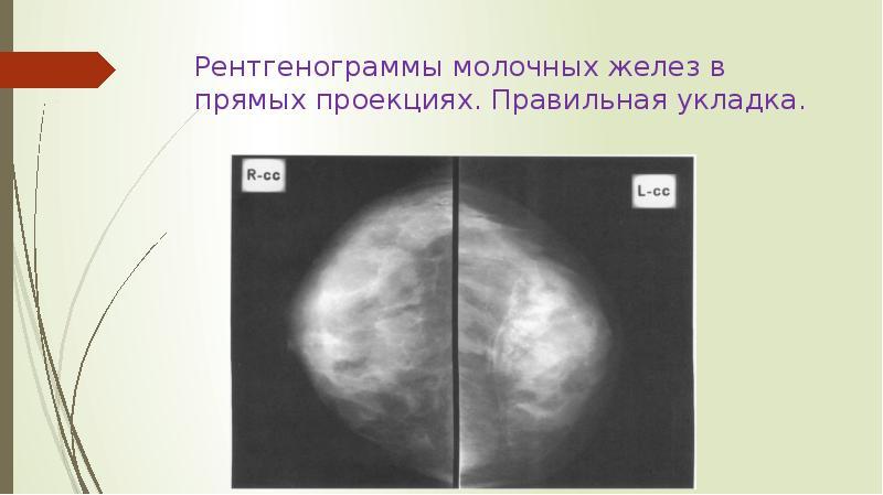Узи грудной железы или маммография