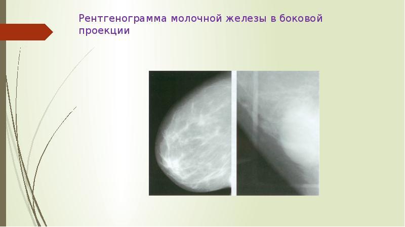 Маммография анализ