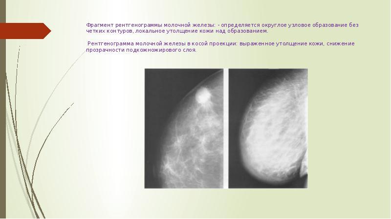 Маммография узловые образования